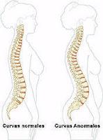 curvas columna embarazo