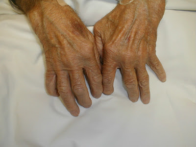 rheumatoid arthritis hand deformed