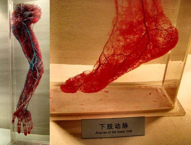 Human Blood Vessels - 28 Awe Inspiring Photos That Prove Just How Cool Mother Nature Is
