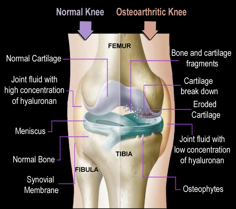 Physiotherapy Patient Education: Osteo
