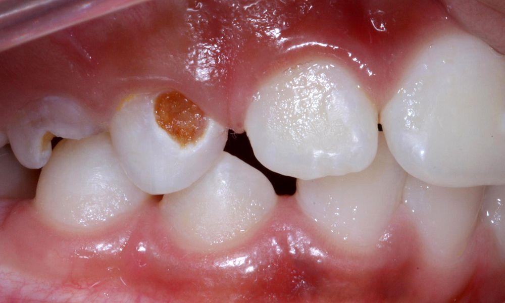 Manchas nos dentes