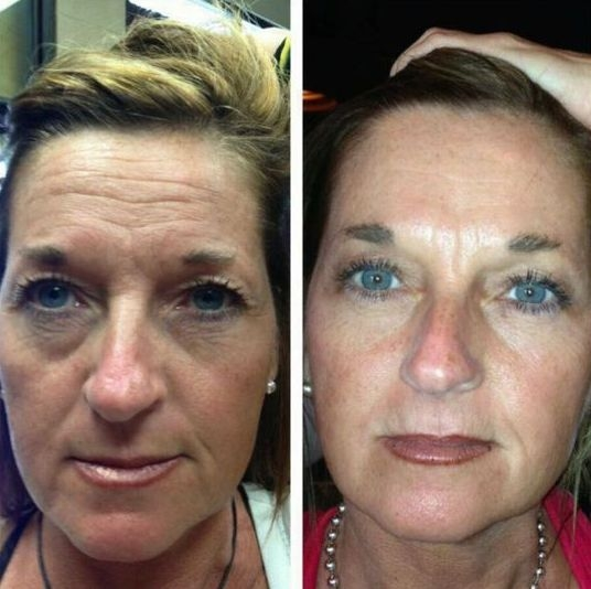 Natural Oriental Facelift By Applying Face Exercises: The ...