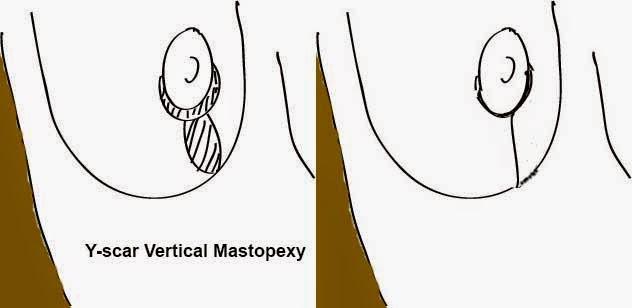 y-scar vertical mastopexy