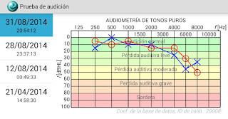 detectar perdida de la audición