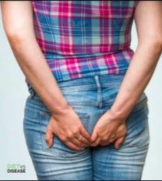 Penyakit Hemoroid: Diagnosis Dan Manajemen