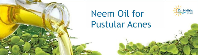 Neem and tea tree oil fights acne