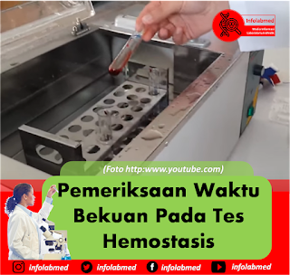 cloting time,clotting time,clotting time adalah,clotting time test,clotting time pdf,clotting time adalah pdf,clotting time bleeding time,clotting time medscape,clotting time memanjang,clotting time method,clotting time practical,clotting time experiment,clotting time in hemophilia,clotting time principle,clotting time factors,clotting time ppt,clotting time disorders,clotting time in thrombocytopenia,clotting time meaning in hindi,clotting time tube method,clotting time prolonged,clotting time and bleeding time,clotting time and bleeding time procedure,clotting time and prothrombin time,clotting time aspirin,clotting time and bleeding time ppt,clotting time abnormalities,clotting time and bleeding time procedure pdf,clotting time after tooth extraction,clotting time and bleeding time difference,activated clotting time,act clotting time,arti clotting time,clotting time bleeding time procedure,clotting time by capillary method,clotting time blood test,clotting time bdo,clotting time blood test normal range,clotting time bleeding time normal value,clotting time by lee and white method,clotting time by capillary tube method procedure,clotting time bleeding time method,clotting time bleeding time pdf,clotting time by slide method,clotting time blood tubes,clotting time bleeding difference,clotting time blood disorder,clotting time bypass,clotting time body,clotting time blood coagulation,clotting time snake bite,clotting time test by capillary tube method