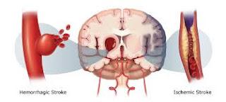 Cara Ampuh Menyembuhkan Penyakit Stroke