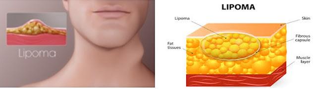 Obat Lipoma Ampuh, Cara Menghilangkan Benjolan Lipoma Tanpa Operasi Terbukti Tuntaskan Sampai Ke Akar