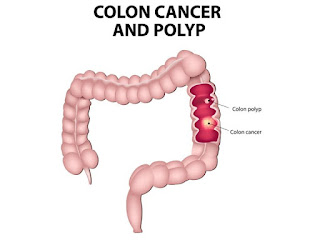 remedios caseros para cancer colon