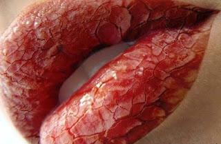 7 Tips Alami Cara Mengatasi Bibir Pecah Pecah dan Kering