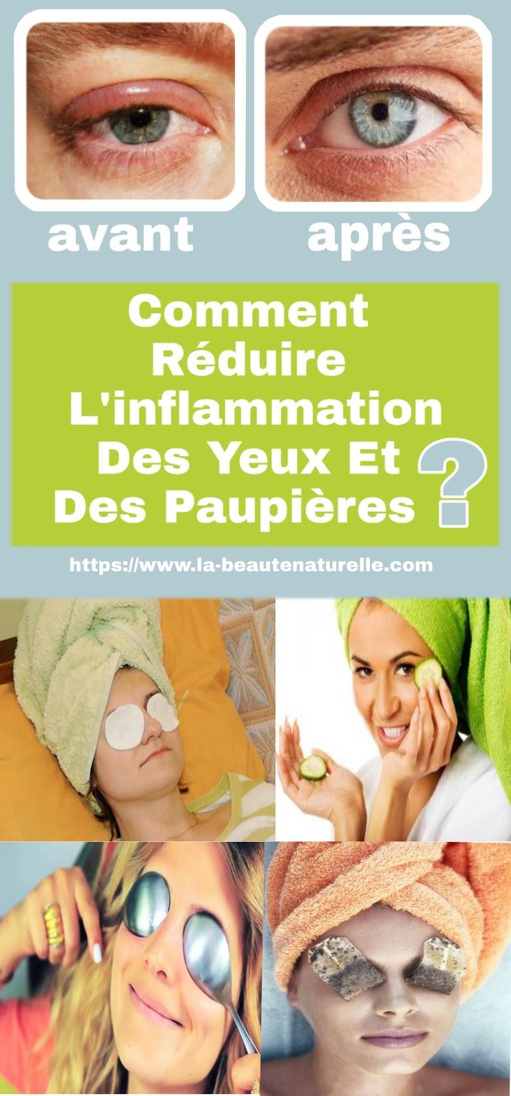 Comment Réduire L'inflammation Des Yeux Et Des Paupières?