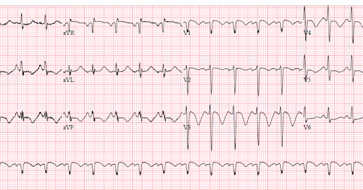 A crashing patient with an abnormal ECG that you must recognize