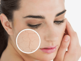 Causes Of Dry Skin All Over Body