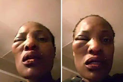 See What My Useless Husband Did To Me Because I Beat His Mum