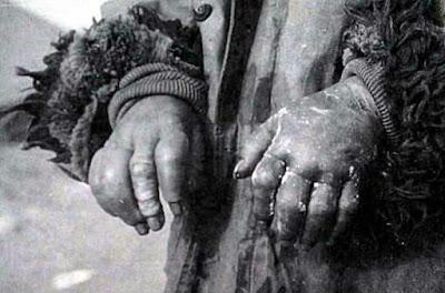 Percobaan mengerikan dari Unit 731