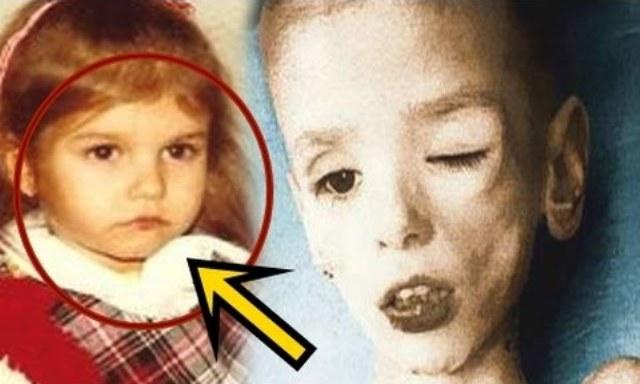 هذه أسوأ نهاية لطفلة ممثلة في هوليوود....قتلها والدها حرقاً بسبب نجاحها ..