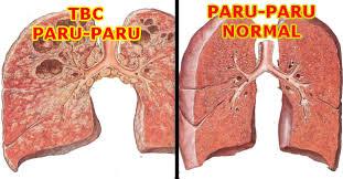 Tbc Dan Paru Paru