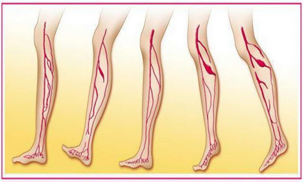 Say Goodbye To Varicose Veins: Learn How To Cure Them With Vinegar, Carrot And Aloe