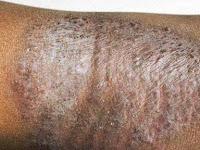 Penyakit Gatal Eksim Dishidrotik