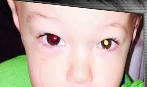 Cara Mengobati Kanker Mata Secara Alami