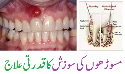 Gingivitis Home Remedies in Urdu