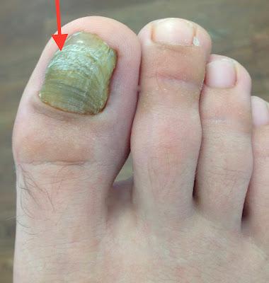 Fußnägel-pflegen-Fußnagel-weiß-verfärbt-Jenn-Cosmetic