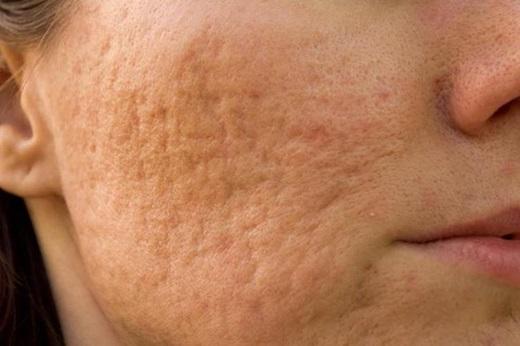 Los 4 tipos de cicatrices producidos por el acné y cómo deshacerte de ellos