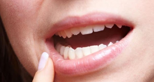 Penyebab dan 13 Cara Ampuh Mengatasi Sariawan Pada Bibir