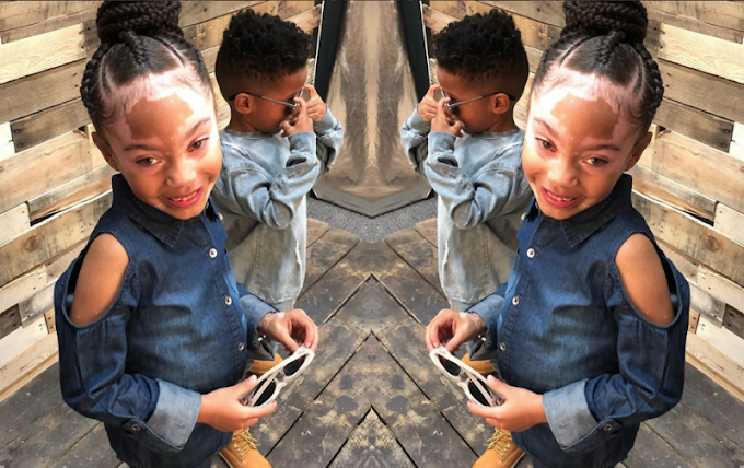 This adorable little girl with vitiligo is empowering others to love themselves