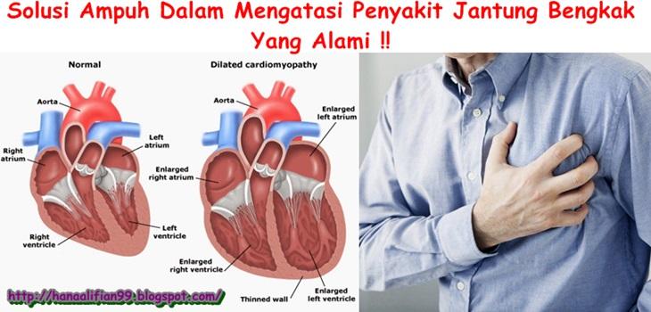 Pengobatan Alternatif Jantung Bengkak Paling Ampuh