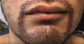 sakal ekimi önce ve sonra