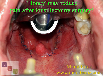Honey may reduce pain after tonsillectomy surgery - Tonsillectomy pain reduced with honey! - Oral honey administration following tonsillectomy - Efficacy of honey in reduction of post tonsillectomy pain - Role of honey after tonsillectomy - Recovery from tonsillectomy - Posttonsillectomy pain relief and epithelialization with honey - Tonsillectomy pain reduced with honey therapy! - Tonsillectomy recovery - How can honey be used after tonsillectomy? - Components of honey - Mechanism of biological action of honey - Tonsillectomy in Istanbul, Tonsillectomy in Turkey, Thermal Welding Tonsillectomy in Istanbul