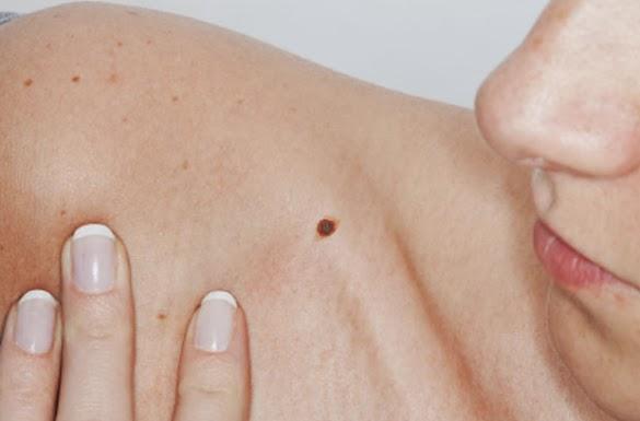 Cara Menghilangkan Tahi Lalat (Andeng-andeng) pada Tubuh