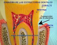 "<Imgsrc=""esquema-exposición-dentina.jpg"" width = ""2464"" height ""1944"" border = ""0"" alt = ""Cuello dental con dentina expuesta"">"