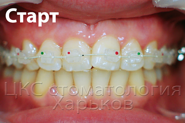Фото зубов после приклеивания керамических брекетов