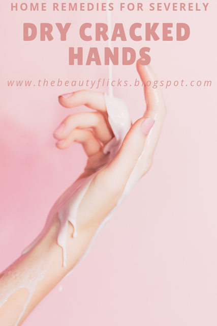 Home Remedies for Severely Dry Cracked Hands