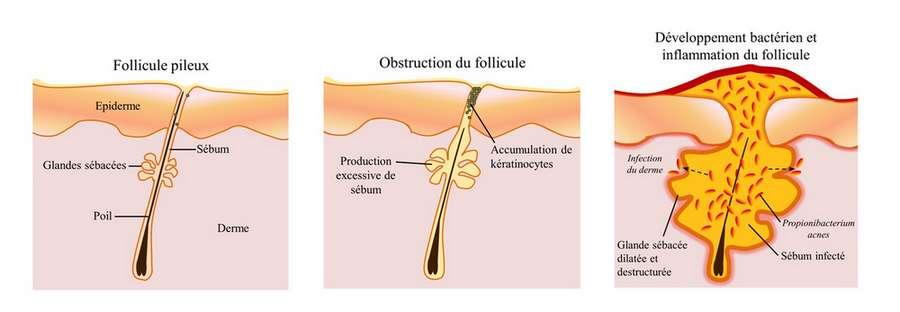 Les causes de l'acné, l'alimentation et quel traitement
