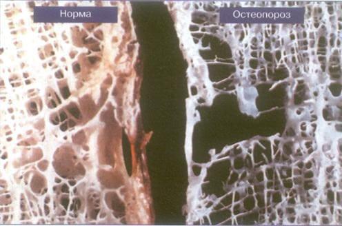 Остеопороз, к какому врачу обращаться
