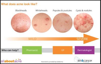 Acne Accuracies