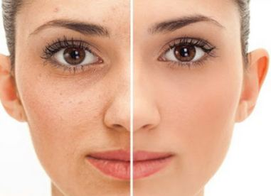 How To Get Flawless Skin - Five Natural Tips To Try Today - Skin Care For you