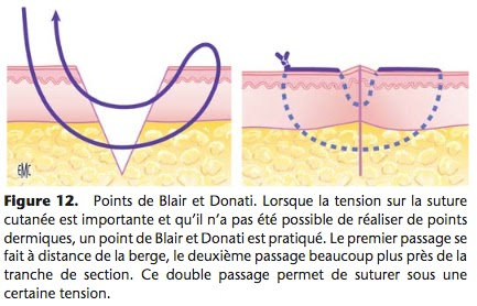 point blair donati suture fil infimier pansement