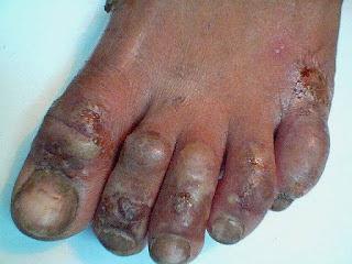 Obat Eksim Basah Bernanah Di Kaki