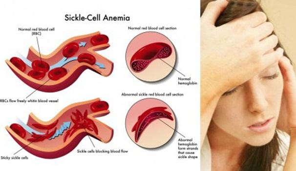 Cara Mengobati Anemia pada Ibu Hamil