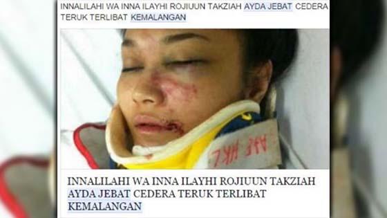 Benarkah Ayda Jebat Cedera Teruk Dalam Kemalangan?