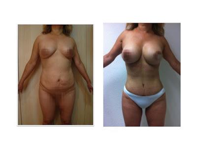 fotos antes y despues de una abdominoplastia lipectomia con aumento de busto guadalajara mexico