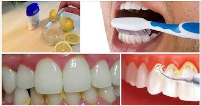 limpiar-los-dientes-de-sarro