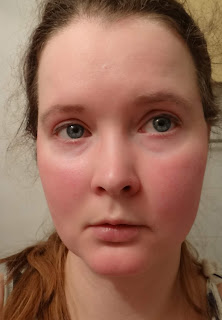 Scarlet Letters, dealing with vascular rosacea, face flushing ...