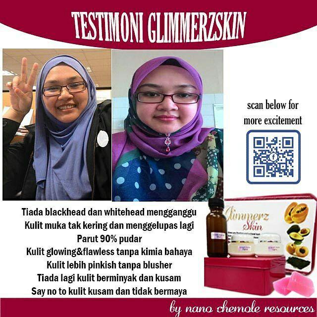Testimoni Glimmerz Skin