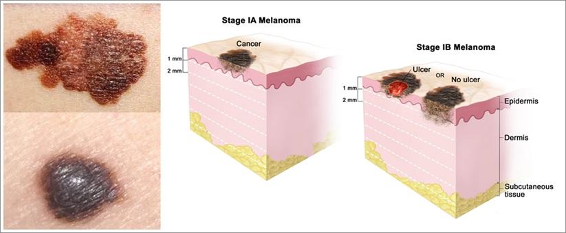 Cara Ampuh Menyembuhkan Kanker Kulit Melanoma Herbal Alami